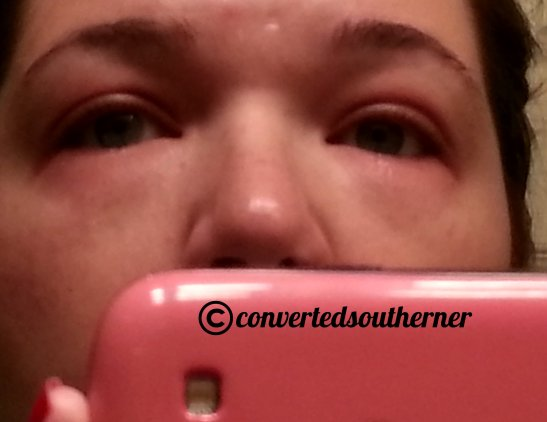 allergic reaction to mascara